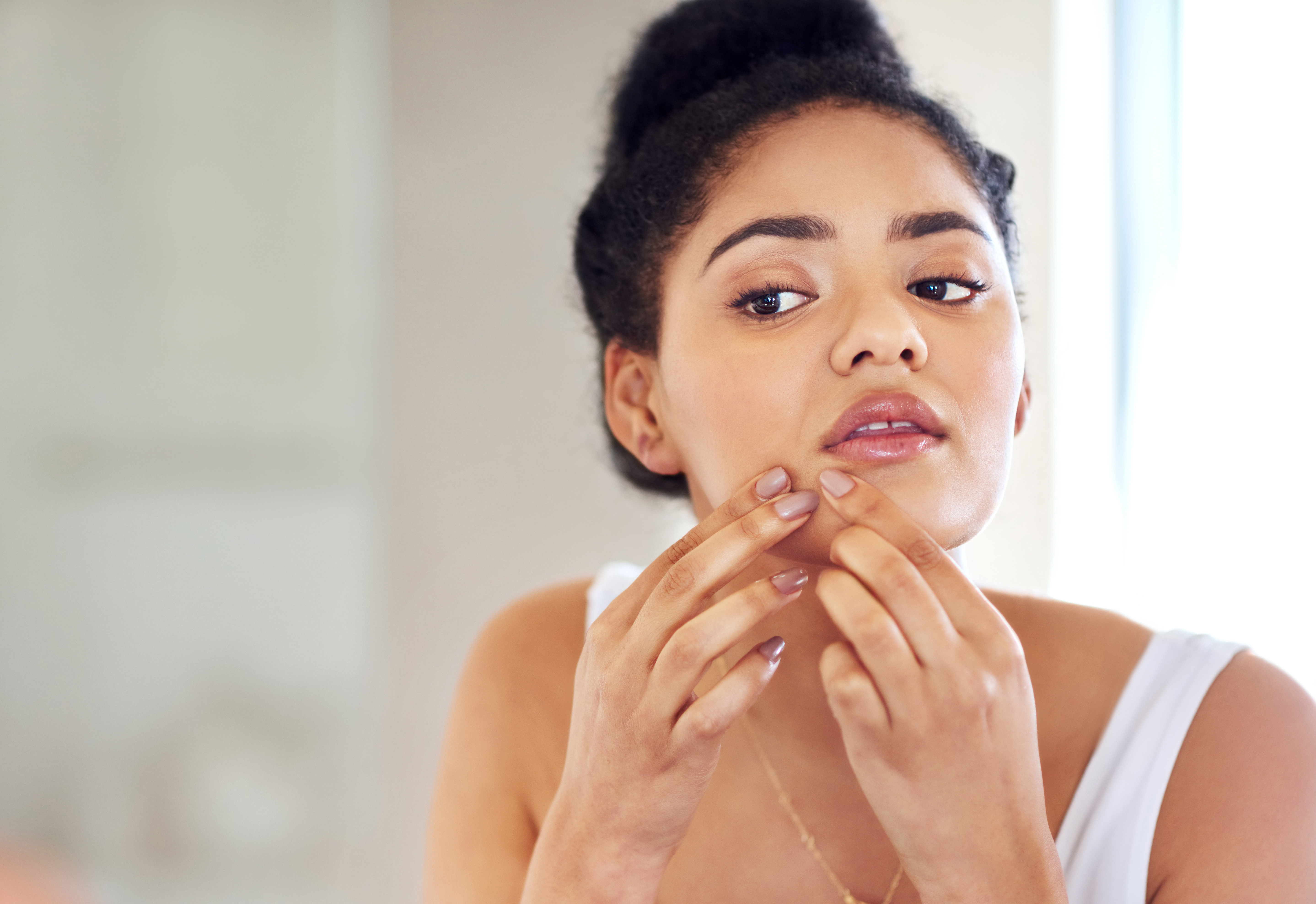 Stress Acne: What to Do About It