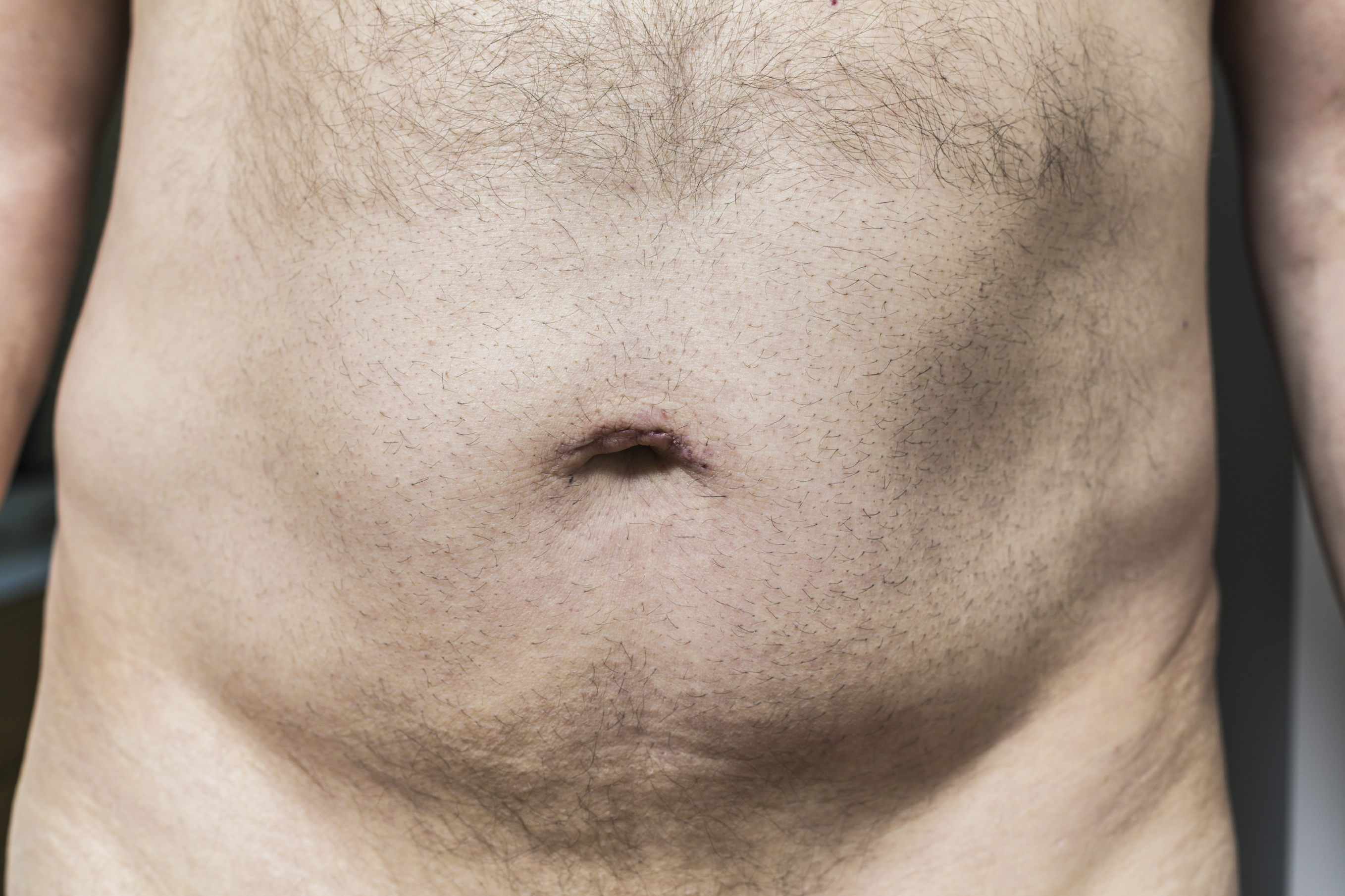 Men with shaved pubes gallery