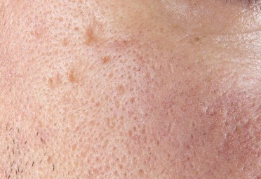 The Worst Skin Care Advice Dermatologists Have Ever Heard