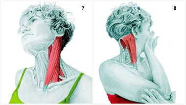 Lateral Side Flexion of the Neck and Neck Rotation Stretch