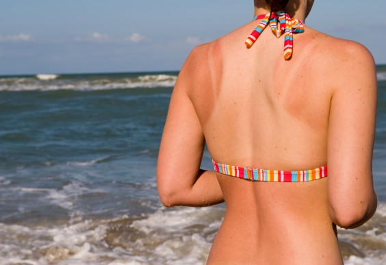 What Really Causes a Sunburn ( And How to Fix it Fast!)