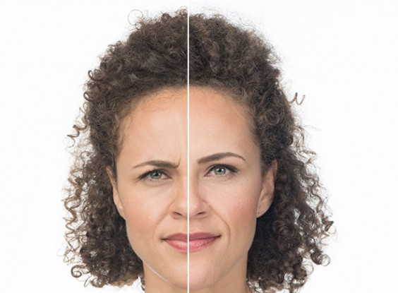 Botox injections why more 20 somethings are getting them greatist botox before and after image solutioingenieria Image collections