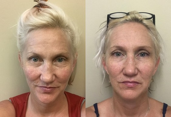 Two photos of the author, before and after face yoga