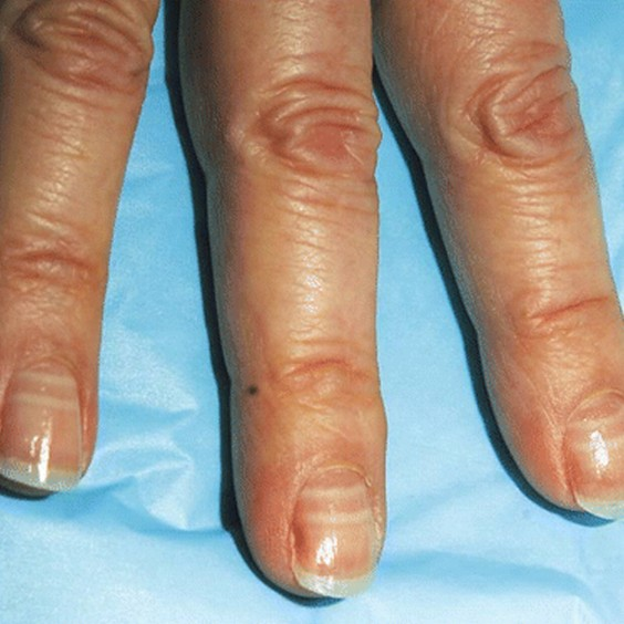 White Lines Watch Out For These Changes To Your Fingernails