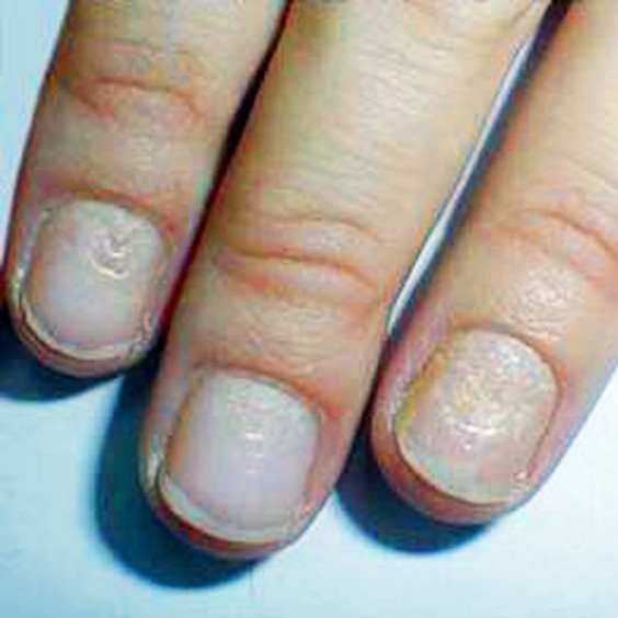 What Do Nail Problems Mean for Your Health? | Greatist