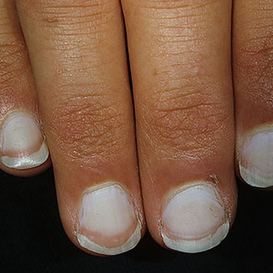 What Do Nail Problems Mean for Your Health?