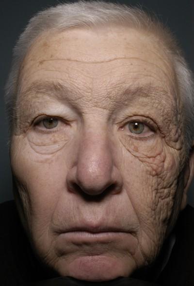 Sun Damaged Face