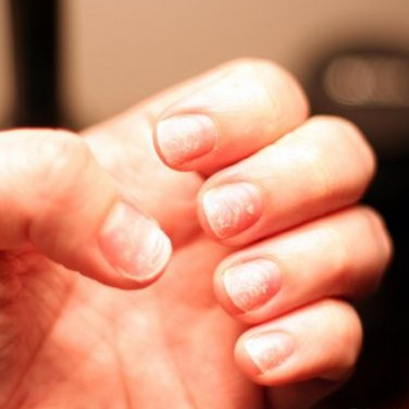 9 Things Your Fingernails Reveal About