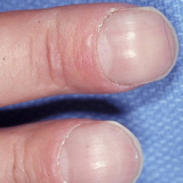 Watch out for these changes to your fingernails.