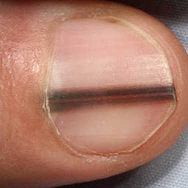 9 Things Your Fingernails Reveal About Your Health | The