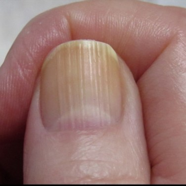 Ridges on Fingernails - Diseases Pictures
