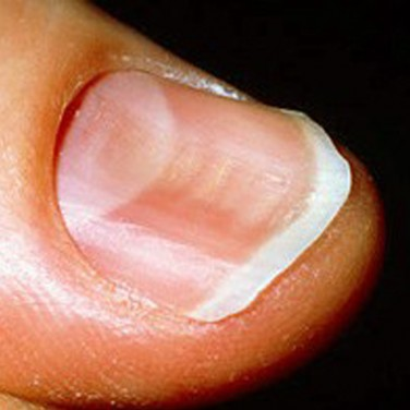 Watch Out For These Changes To Your Fingernails