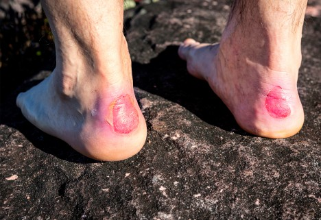 The Easiest, Cheapest Way to Prevent Blisters