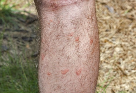What Attracts Mosquitoes: Hairy Leg With Mosquito Bites