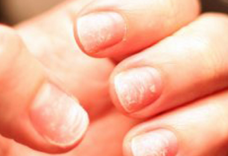 9 Things Your Fingernails Reveal About Your Health