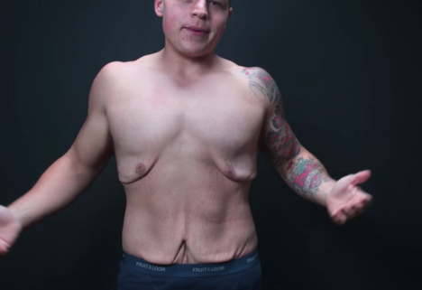 This Video Shows What's Missing From Every Before and After Weight-Loss Photo