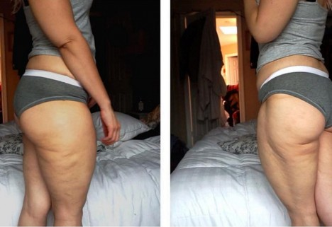 "Take a #CelluliteSaturday Photo Because Those ""Cottage Cheese Thighs"" Are Totally Normal"
