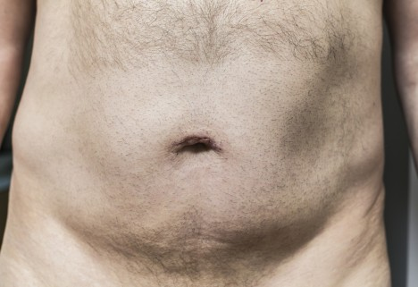 Why You Shouldn't Shave Your Pubic Hair