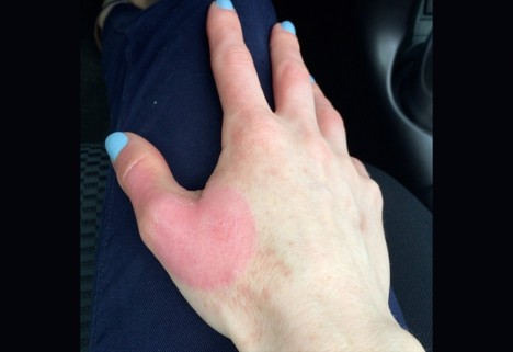 Woman With Phytophotodermatitis