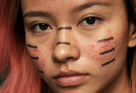 This Photographer Makes Acne Look Beautiful, 'Cause Guess What? It's Normal