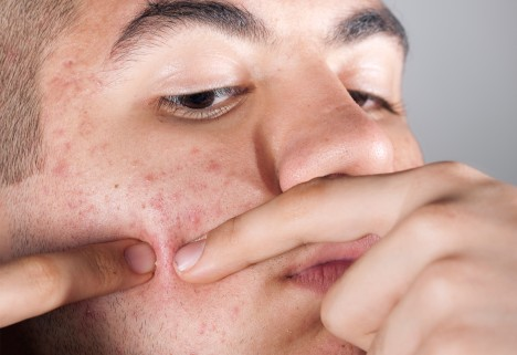 Man Popping Pimple on Face