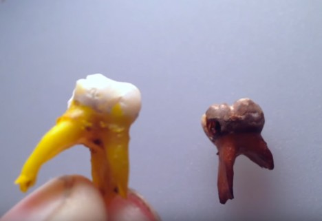 Oh Man, Watching What Soda Can Do to Your Teeth Is So Gross