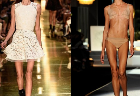 Finally, Models Call Out Fashion Week for Promoting Disordered Eating