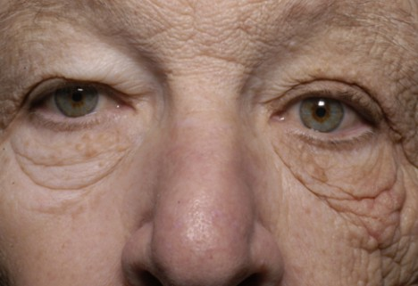 The Startling Effects of Sun Damage (and How to Avoid Them!)